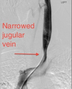 NarrowVein